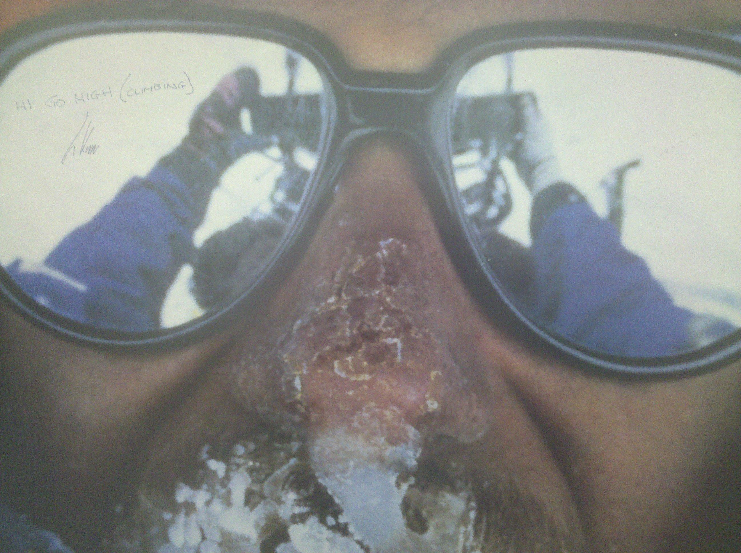 Goran face snow sunglasses